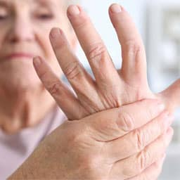 Mild Arthritis Relief
