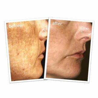John Plunkett's Superfade Face Cream 40mL