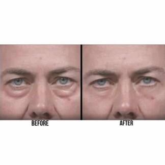Thin Lizzy Puffy Eye Remover Microcream 25mL